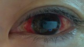 白目が突然真っ赤に!?「結膜下出血」とはどんな病気?