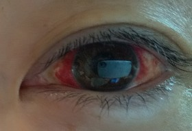 真っ赤な目